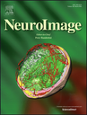 Article selected as cover of NeuroImage 128